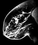 Agrafe de biopsie sur la masse irrégulière dans le sein images libres de droits