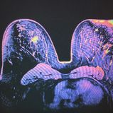 Agrafe de biopsie sur la masse irrégulière dans le sein photographie stock