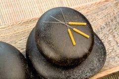 Agujas de la acupuntura Foto de archivo libre de regalías