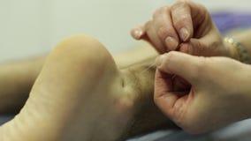 Agujas de la acupuntura que ponen HD metrajes