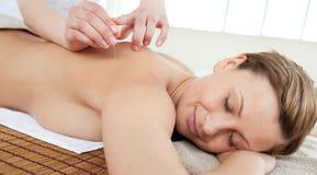 Agulhas da acupunctura na parte traseira de uma mulher bonita Fotografia de Stock Royalty Free