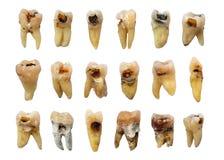 Ajuste dos dentes com deterioração de dente da cárie dental, fluorosis e cálculo Fundo isolado imagens de stock