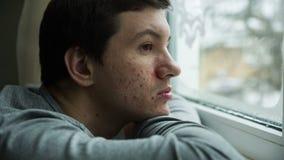 Akne auf einem Gesicht eines Mannes stock video