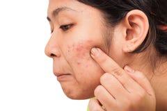 Akne auf Gesichtsfrauen lizenzfreies stockbild