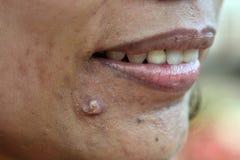 Akne auf Hautgesicht stockfotos