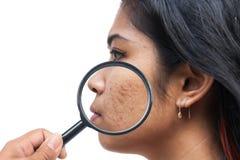 Akne auf Hautgesichtsfrauen Lizenzfreie Stockfotografie