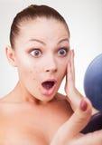 Akne in den Frauen Lizenzfreie Stockfotografie