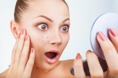 Akne in den Frauen lizenzfreie stockbilder