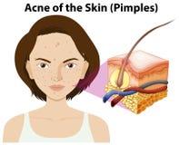 Akne der Haut auf einer Frau lizenzfreie abbildung