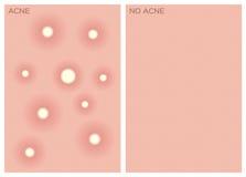 Akne, vor und nach Beschaffenheit, Lizenzfreie Stockbilder