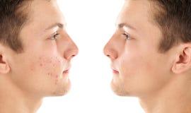 Aknebehandling för tonåring före och efter arkivbild