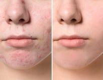 Aknebehandling för ung kvinna före och efter, royaltyfria bilder