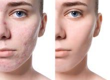 Aknebehandling för ung kvinna före och efter royaltyfri bild