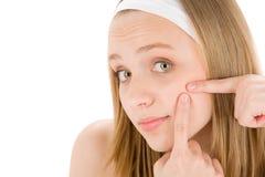 Aknegesichtssorgfaltjugendlichfrau, die Pimple zusammendrückt Lizenzfreie Stockbilder