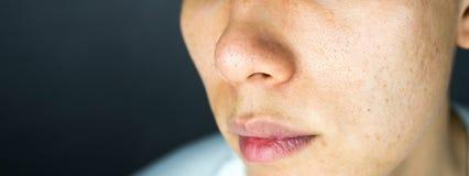 Aknepickel schrammen auf Gesichtshautfragen, Abschluss oben Stockbilder