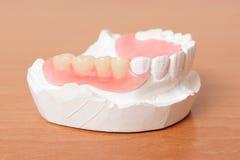 akrylowego denture fałszywi zęby Zdjęcie Royalty Free