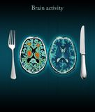 aktivitetshjärna Arkivfoto