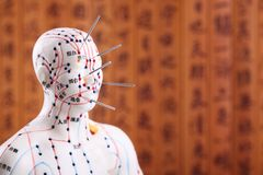 Akupunktur-ärztliche Behandlung. Lizenzfreie Stockfotografie