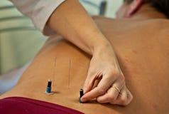 akupunktur Royaltyfria Foton