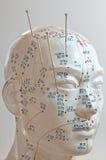 akupunktur Royaltyfri Fotografi