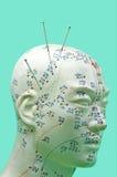 akupunktur Arkivfoto