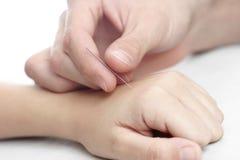 Akupunktur Lizenzfreies Stockfoto