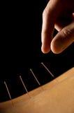 Akupunktur Lizenzfreie Stockfotografie