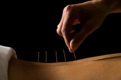 akupunktur Royaltyfria Bilder