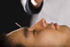 akupunktur Royaltyfri Foto