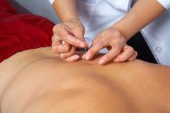 akupunktur baksidt Arkivbilder