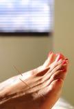 Akupunktur am Fuß Stockbild