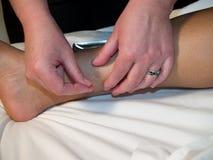 Akupunktur-Konzept Stockbild