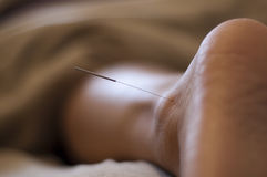 Akupunktur-Nadel Lizenzfreies Stockfoto