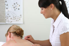 akupunktura Zdjęcie Royalty Free