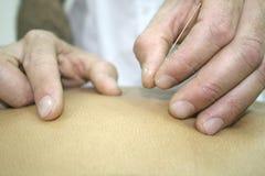 akupunktura Fotografia Royalty Free