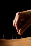 akupunktura Fotografia Stock