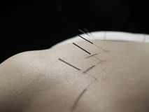 akupunkturbegrepp royaltyfria foton