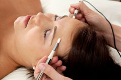 akupunktury electro obraz stock