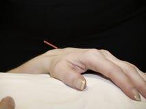 akupunktury pojęcie Obraz Stock