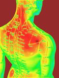 akupunktury pojęcie Zdjęcie Stock