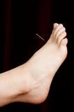 akupunktury stopa Zdjęcia Stock