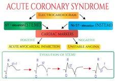 Akut koronar syndrom Schematisk elektrokardiogram av myocardial infarction( hjärta attack) royaltyfri illustrationer