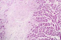 Akut myocardial infarkt, histologi av hjärtasilkespappret, ljus micrograph royaltyfria bilder