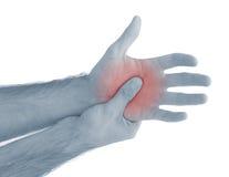 Akute Schmerz in einer Mannpalme. Lizenzfreie Stockbilder
