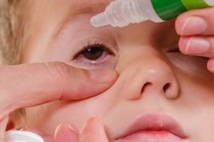 Alérgico rojo de la alergia y de la conjuntivitis del niño del ojo, medicina imagen de archivo