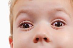Alérgico rojo de la alergia y de la conjuntivitis del niño del ojo, pinkeye imágenes de archivo libres de regalías
