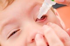 Alérgico rojo de la alergia y de la conjuntivitis del niño del ojo, salud inyectada en sangre imagen de archivo