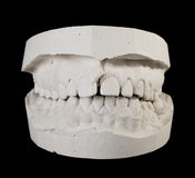Alabaster cast jaws man Stock Images