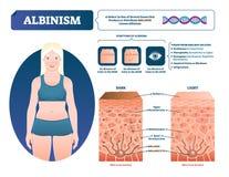 Albinizmu wektoru ilustracja Przylepiający etykietkę medyczny melanina pigmentu straty plan ilustracja wektor