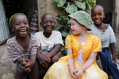 Albino child and boys in Ukerewe, Tanzania Stock Image